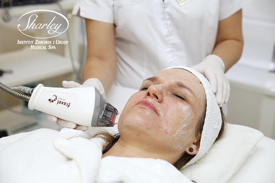 Laserowe leczenie przebarwień skóry