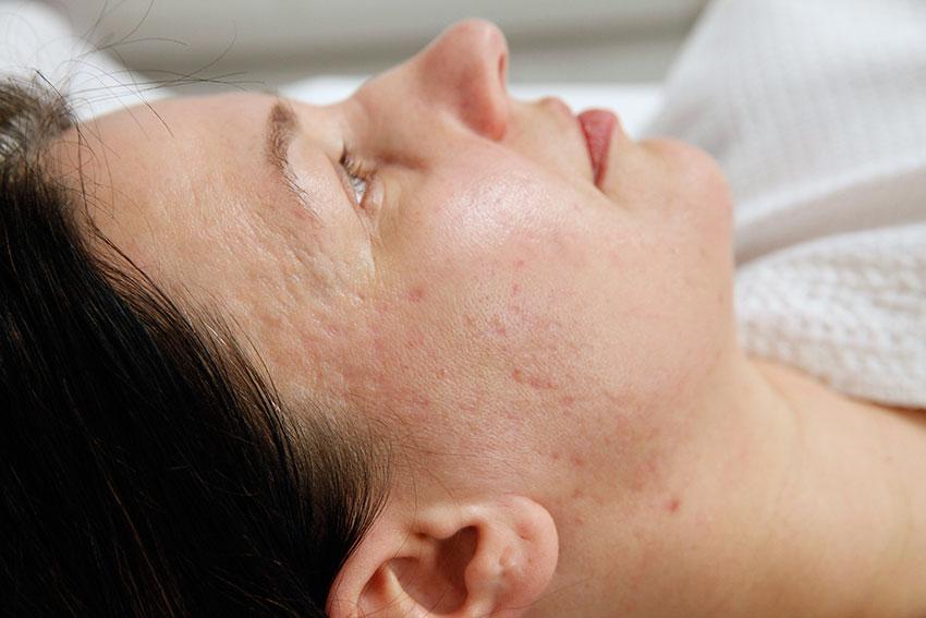 regeneracja skóry twarzy