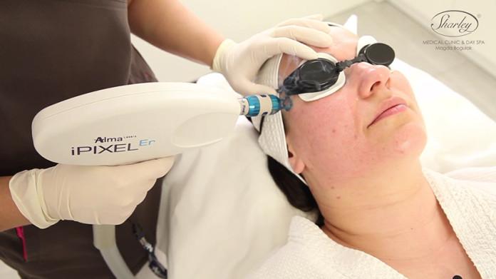 regeneracja skóry twarzy laserem