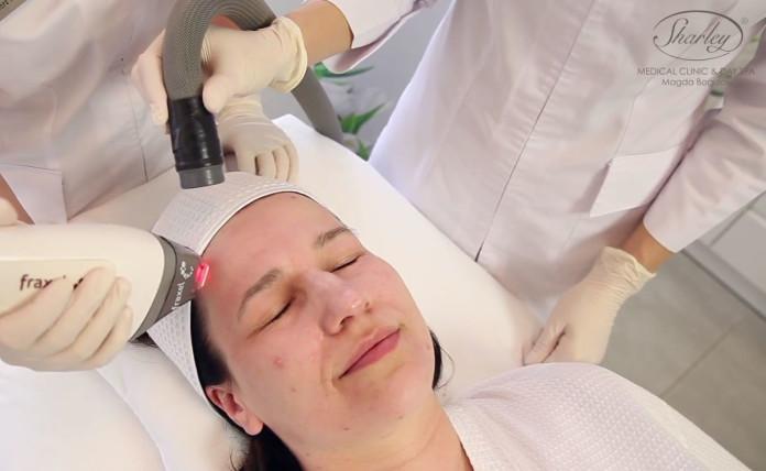 Usuwanie blizn po trądziku laserem